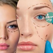 اطلاعاتی در مورد جراحی پلک؛ چه اقداماتی باید بعد از عمل انجام دهید