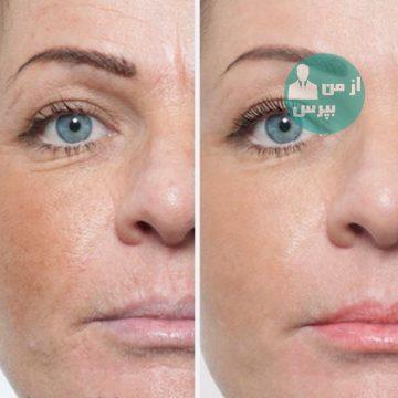 چند روش برای جوانسازی پوست