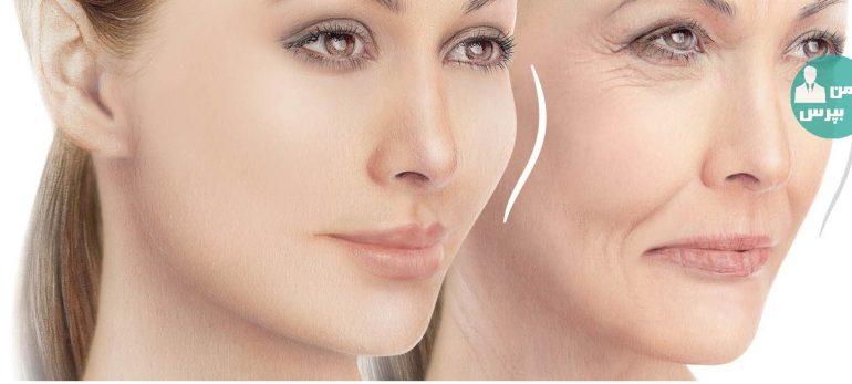 تزریق پلاسما برای جوانسازی پوست