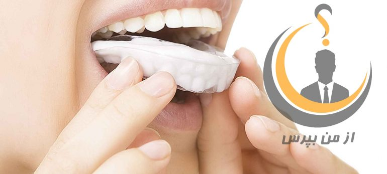 روش مطمئن برای سفید کردن دندانها با روش بلیچینگ