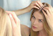 جلوگیری از ریزش مو با استفاده از گیاهان دارویی