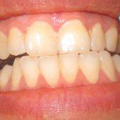 عادت هایی که موجب زرد شدن دندان ها می شود