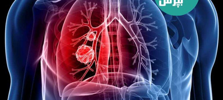 آشنایی با علائم سرطان ریه و روش های درمانی مربوط به آن