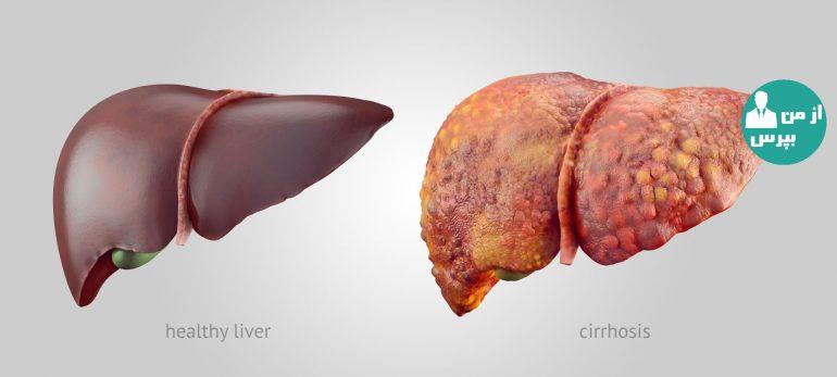 عوارض کبد چرب/ آیا کبد چرب باعث مرگ می شود؟