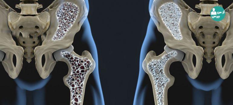 با درمان غیر هورمونی پوکی استخوان بیشتر آشنا شویم