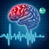 دلایل ابتلا به سکته ی مغزی و آشنایی با علائم آن