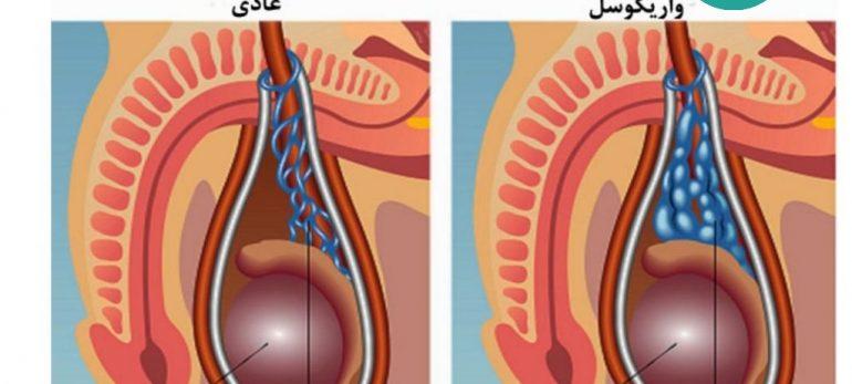 آیا تنها راه درمان بیماری واریکوسل جراحی است؟