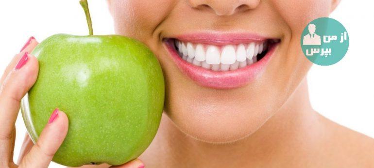 سفید کردن دندانها با استفاده از بلچینگ