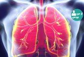 با بیماری های انسدادی مزمن ریه بیشتر آشنا شویم