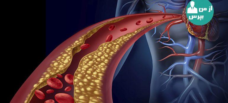 چگونه می توان میزان گلوکز موجود در خون در کنترل کرد؟