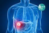 با نشانه های ابتلا به بیماری هپاتیت بیشتر آشنا شوید