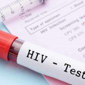 آشنایی با راههای تشخیص و درمان بیماری ایدز