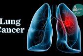 ایران بالاترین رتبه را در تشخیص و درمان سرطان ریه دارد