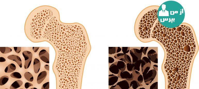 در مورد پوکی استخوان بیشتر بدانیم