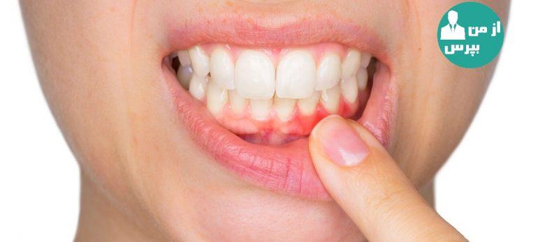 آشنایی با راههای درمان دندان قروچه