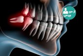 آنچه باید درباره ی دندان های عقل و دندان های پنهان بدانیم