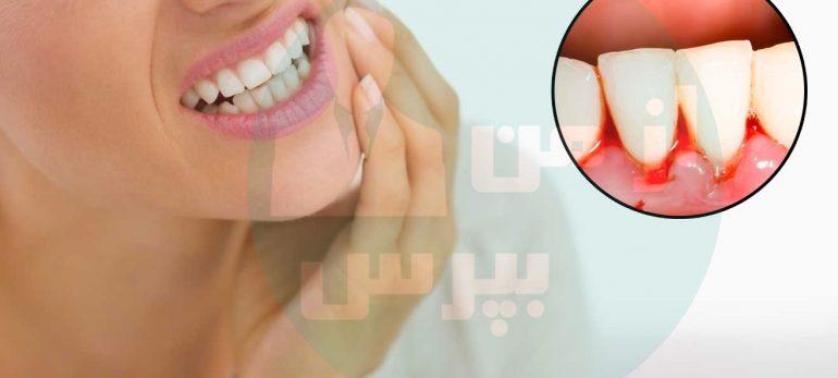 اگر دوست دارید دندان هایتان سفید شوند این مقاله را بخوانید