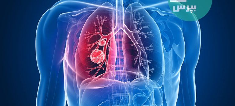 بیماری های انسدادی مزمن ریه