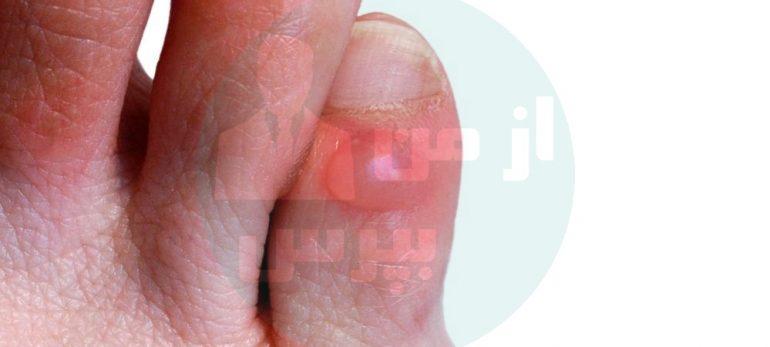 چند روش خانگی برای درمان تاول پا