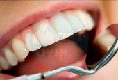 چه باورهایی در مورد دندان ها اشتباه است؟