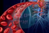 علائم بیماری های خون چیست؟